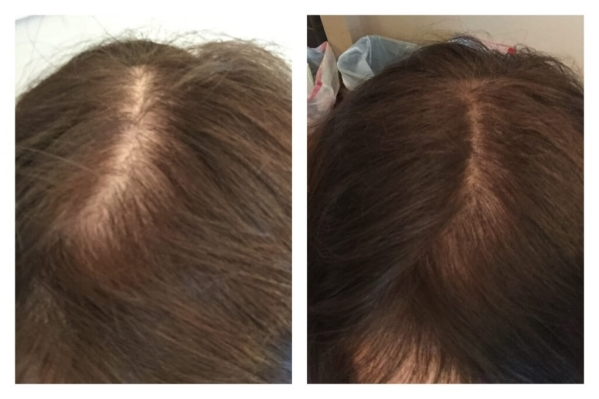 madison reed root touch up before and after